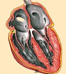 Рестриктивная кардиомиопатия (РКМП)